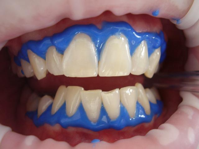 Jak wybielić zęby laserem