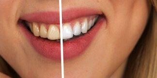 Jak wybielić zęby: efekty